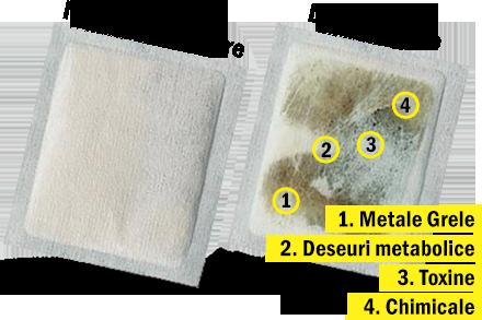 plasturi detoxifiere catena pret