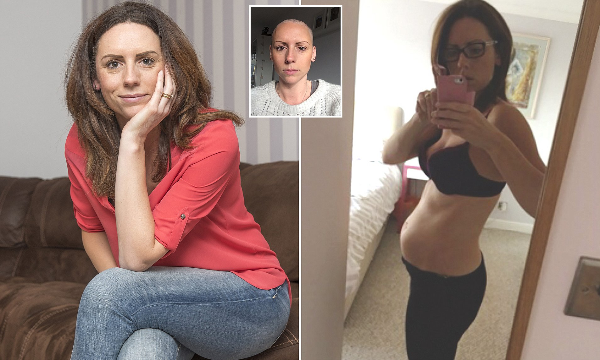 ovarian cancer abdominal bloating pictures