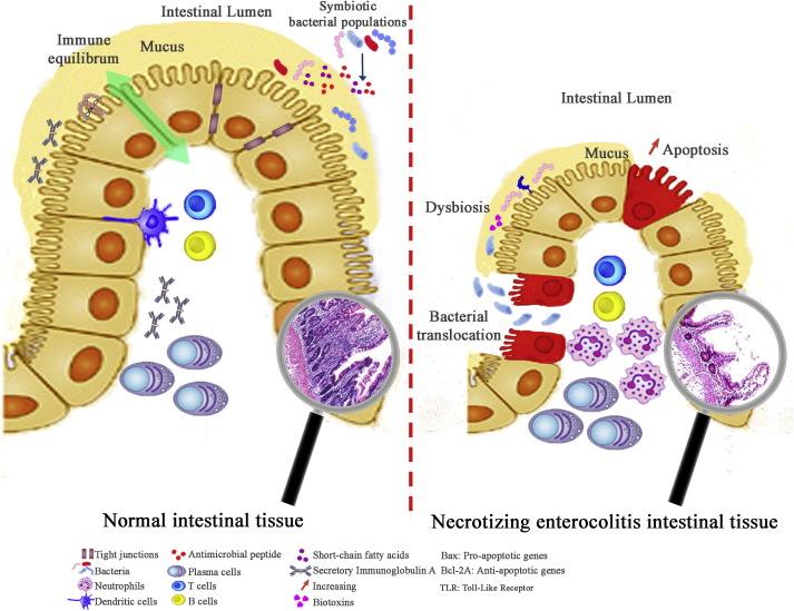cancer de col uterin cauze si simptome renal cancer hypercalcemia