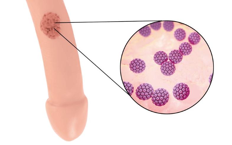hpv genitalwarzen behandlung