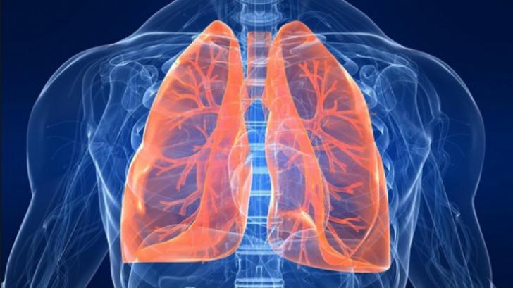 cancerul pulmonar primele simptome)