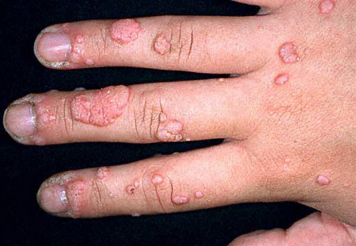 wart virus finger)