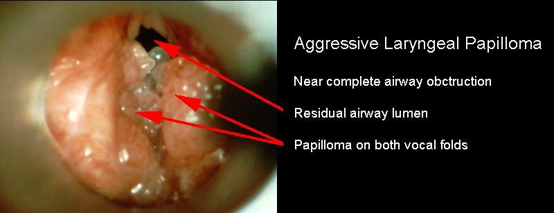laryngeal papillomatosis onset)
