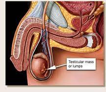 testicular cancer nonseminoma
