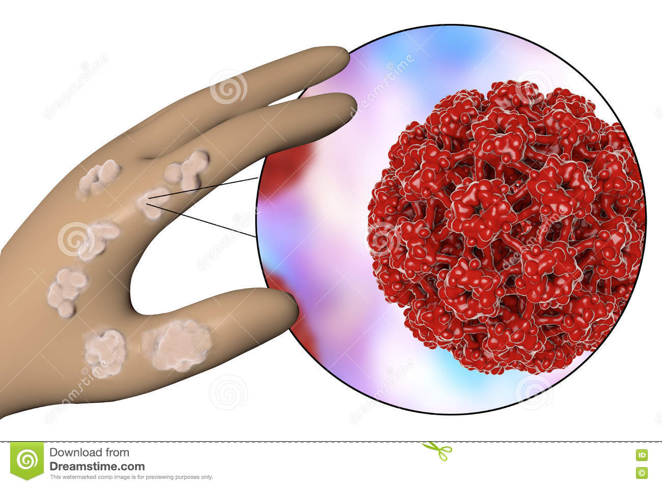 hpv as?s? gardasil 9 rectal cancer what is it