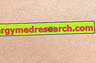 cancer de piele carcinom scuamos