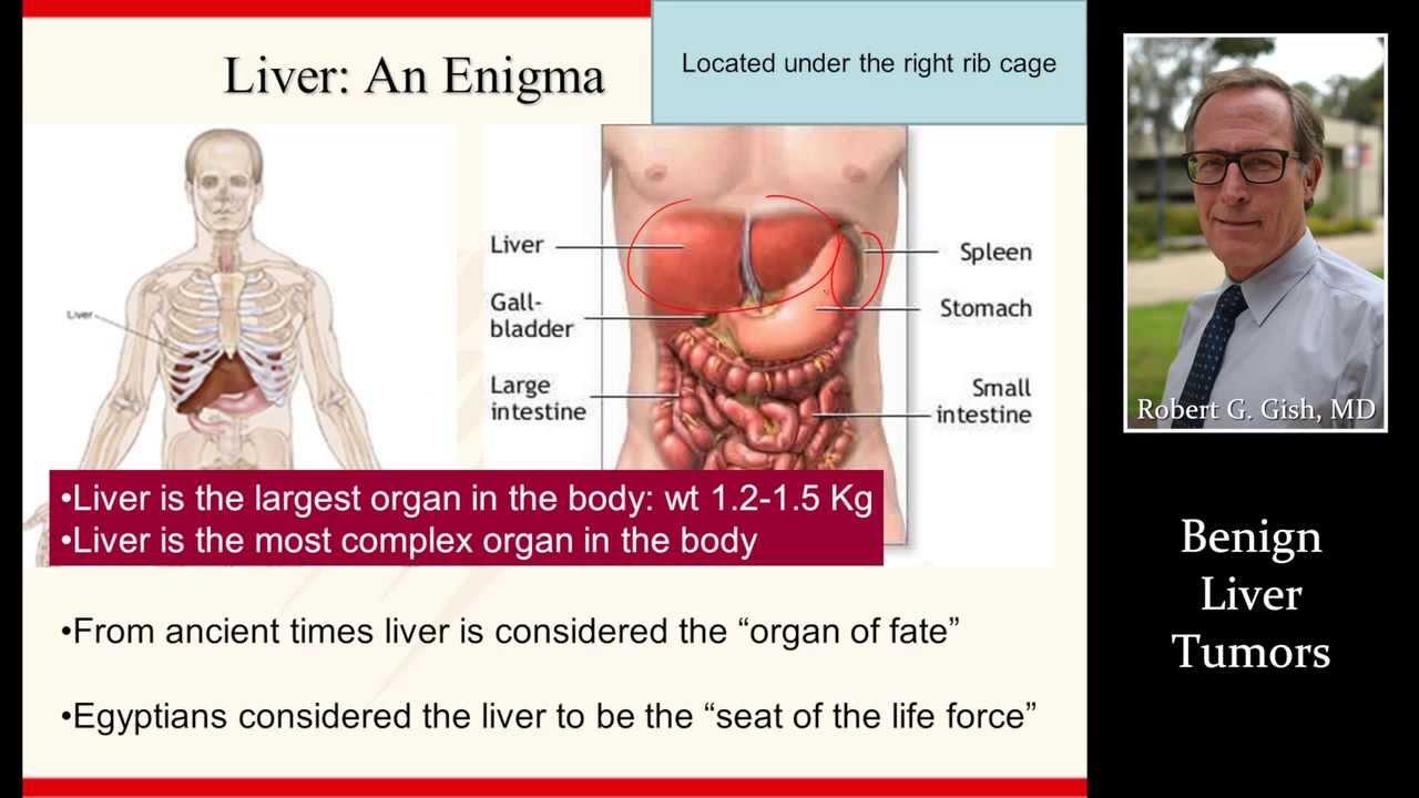 benign cancer in humans tratament impotriva oxiurilor
