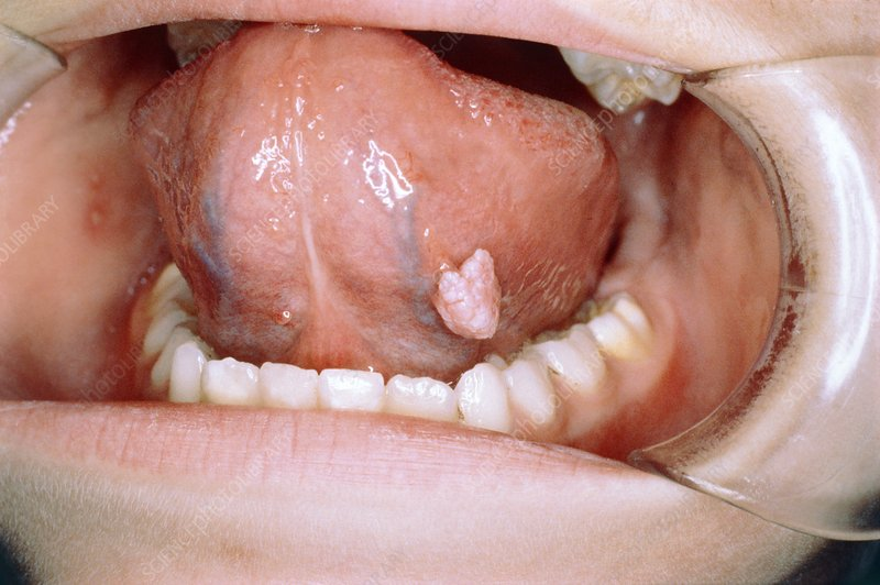 warts on the tongue pictures