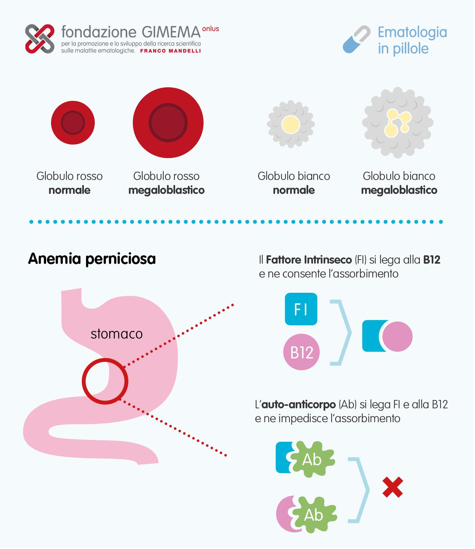 Anemia prin deficit de vitamina B12 - simptome și tratament