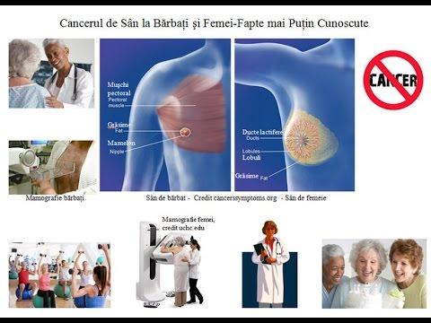 cancer san la baieti papillary thyroid cancer return
