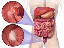 cancer colon guerison