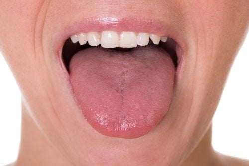 papilloma sulla lingua