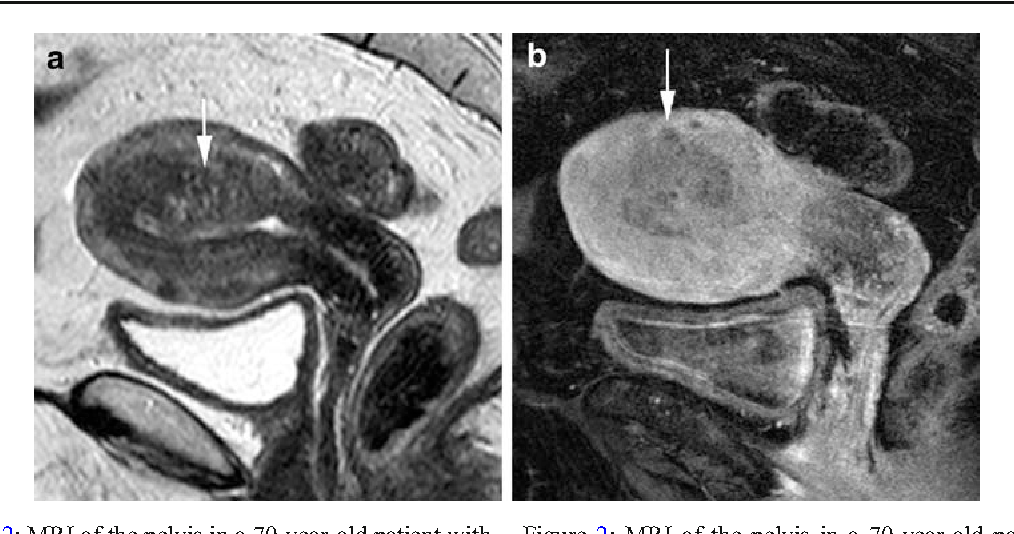 endometrial cancer on mri)