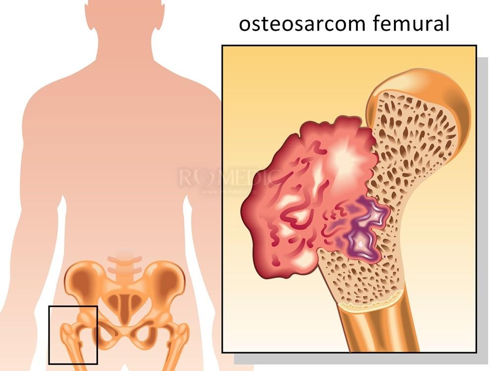 cancer osos secundar simptome