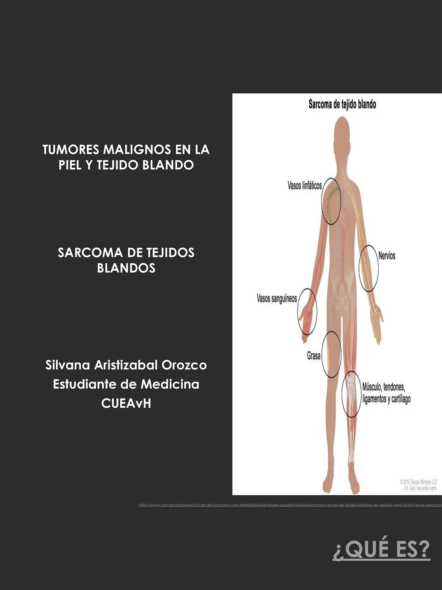 cancer sarcoma tejido blando hepatic cancer resection