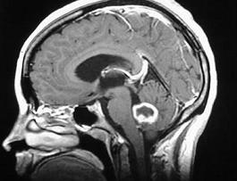 cancer cerebral agresivo teoria gaurile de vierme