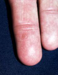 Human Papilloma Virus – Verucilor genitale – Verucilor genitale – Medicină