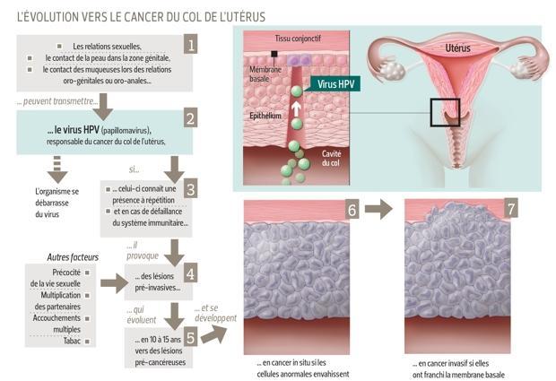 lesion hpv traitement
