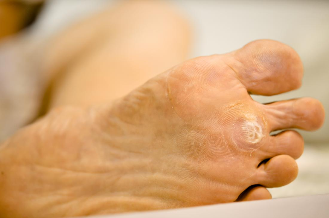 Fotografie Closeup of foot with a infected wart placed under toes # | fotobanca Fotky&Foto