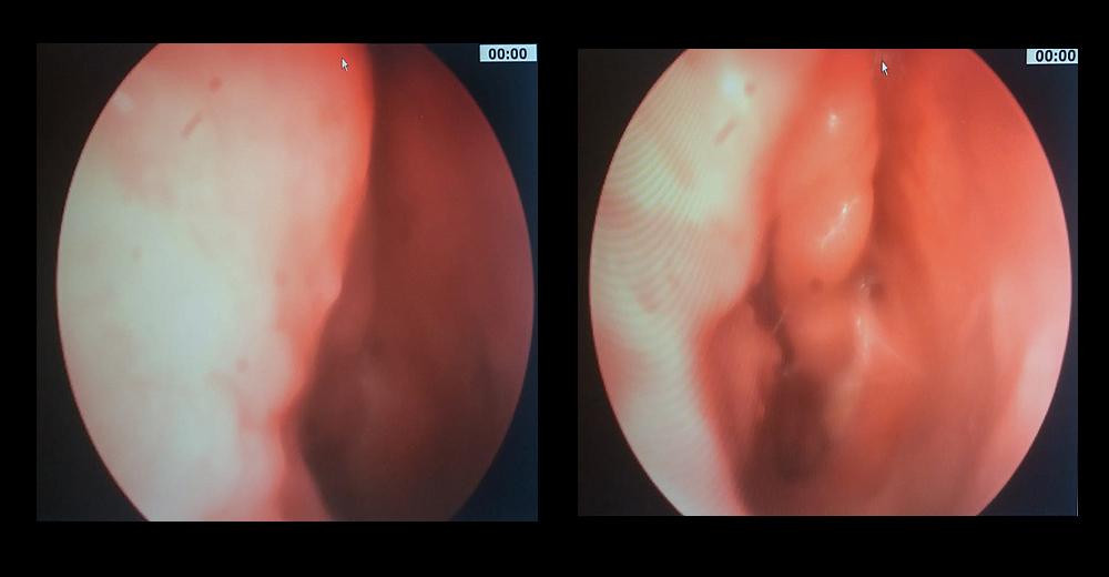 de col uterin - Traducere în italiană - exemple în română | Reverso Context