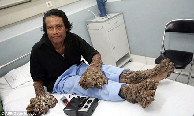 hpv tree disease)