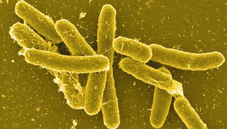 Echinococcus: Anticorpi IgG   Synevo