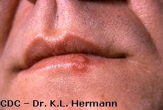 Virusul herpes simplex