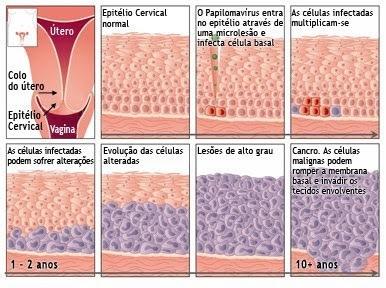 virus del papiloma humano - Traducere în română - exemple în spaniolă | Reverso Context