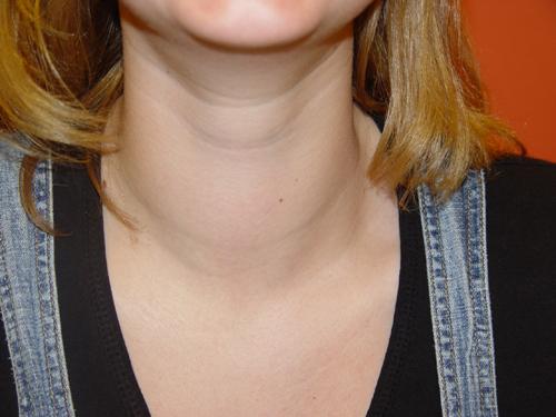 papillary thyroid cancer goiter)