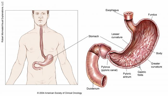 cancer of gastric antrum