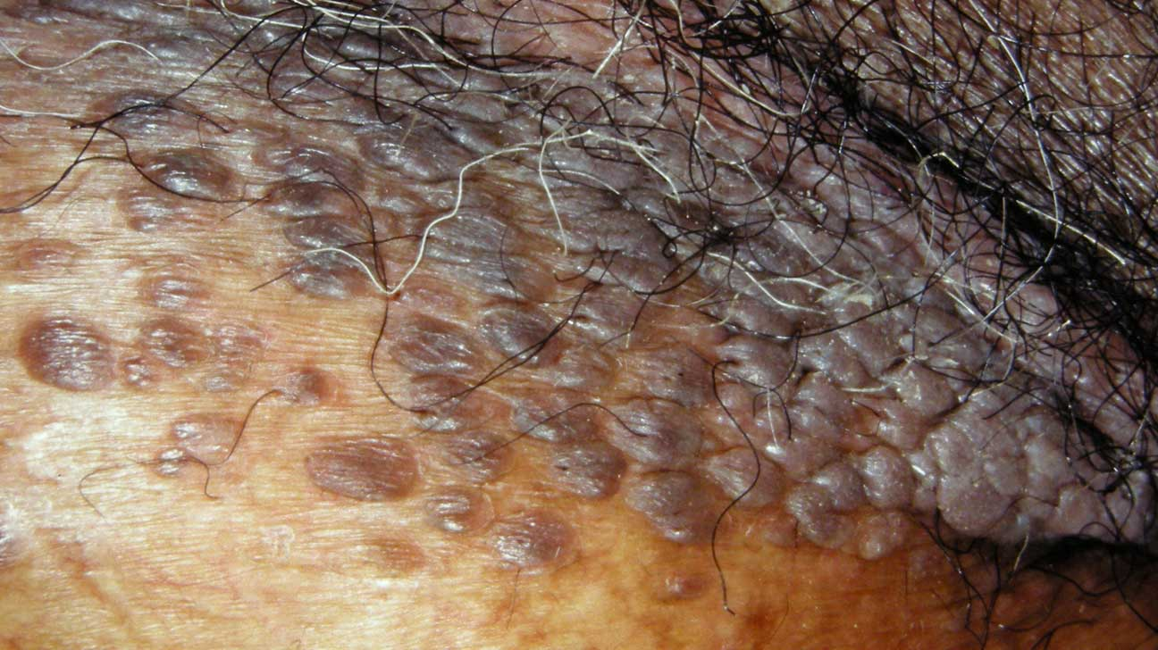 hpv wart color