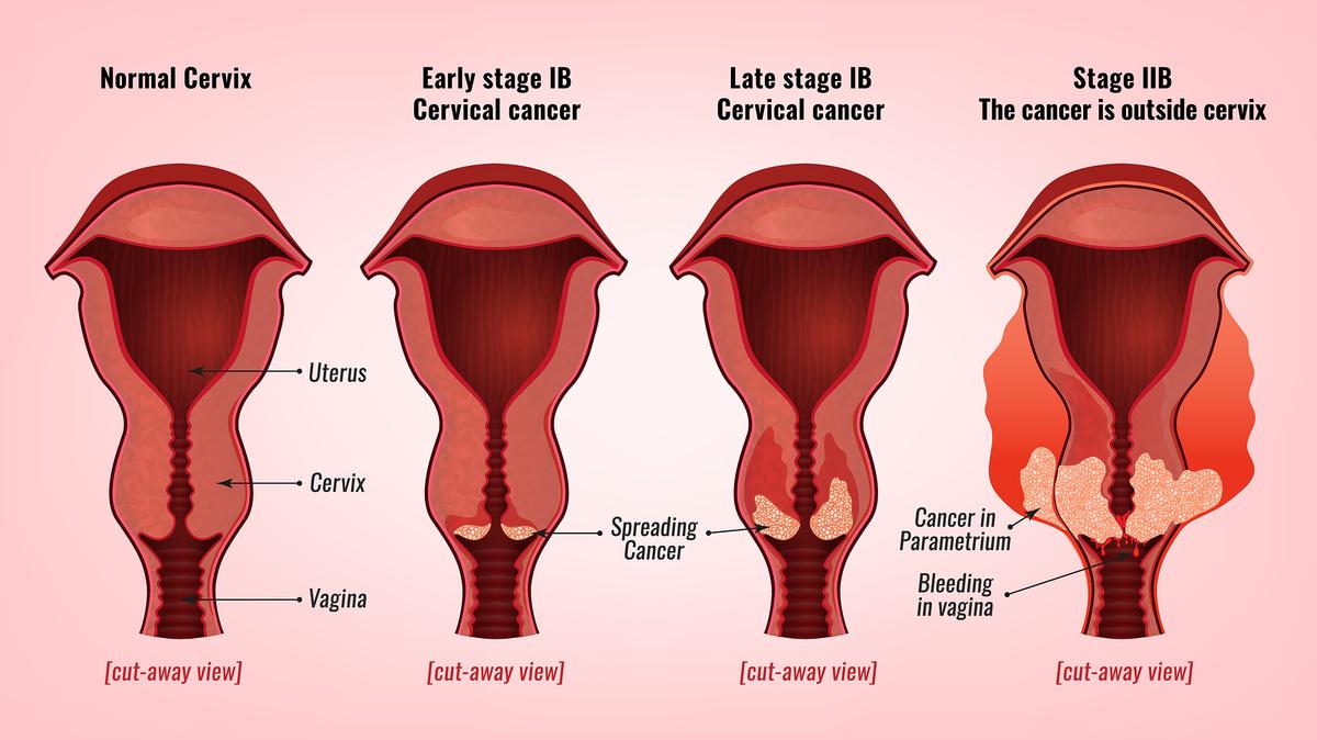 hpv en mujeres contagio