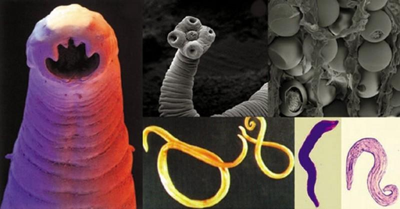 co sposobuju parazity v tele