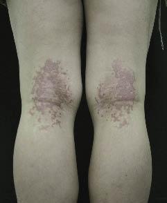 Treatment of Skin Disease: Comprehensive Therapeutic Strategies, 5e