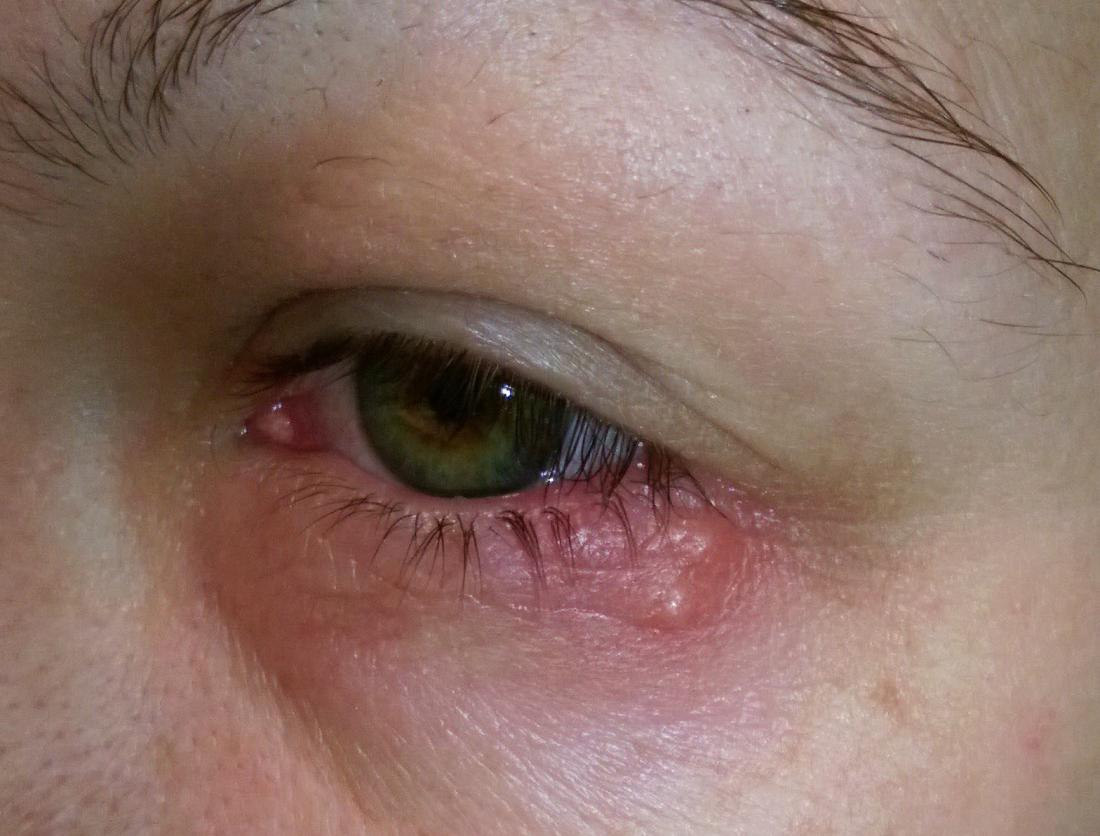 hpv in eye papilloma virus koiralla