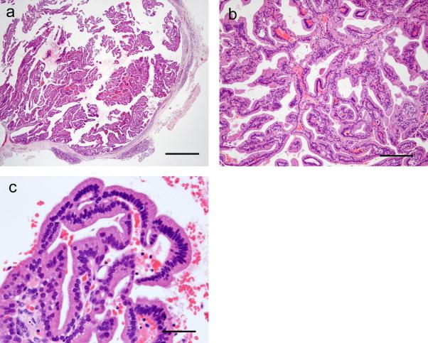 ductal papilloma of salivary gland papillomavirus e vaccino