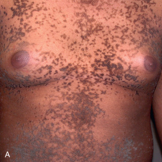 confluent and reticulated papillomatosis differential