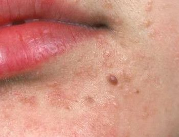 cancer medical professional warts cure homeopathy