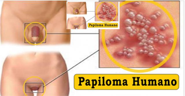 papiloma humano y sintomas