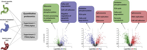 gastric cancer of progression detoxifiere medicamente