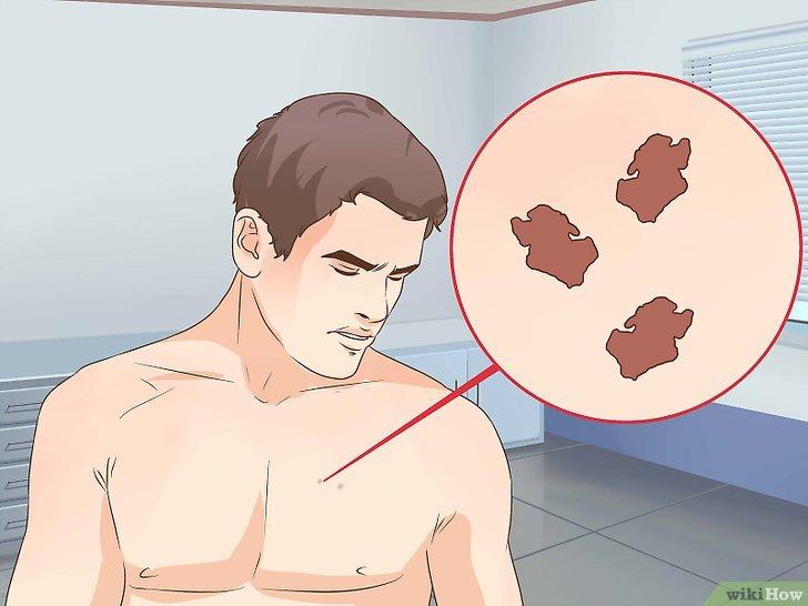 cancerul de piele de la solar