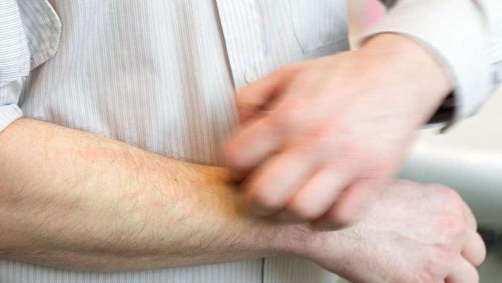 papiloma nasal cid cancer mamar depistare