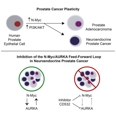 neuroendocrine cancer of prostate enterobius vermicularis symptomen