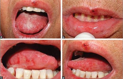 cancer in gura simptome)