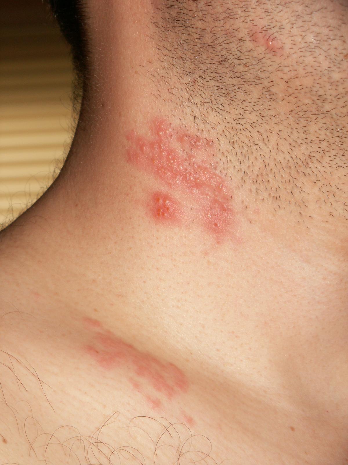 papilloma virus manifestare