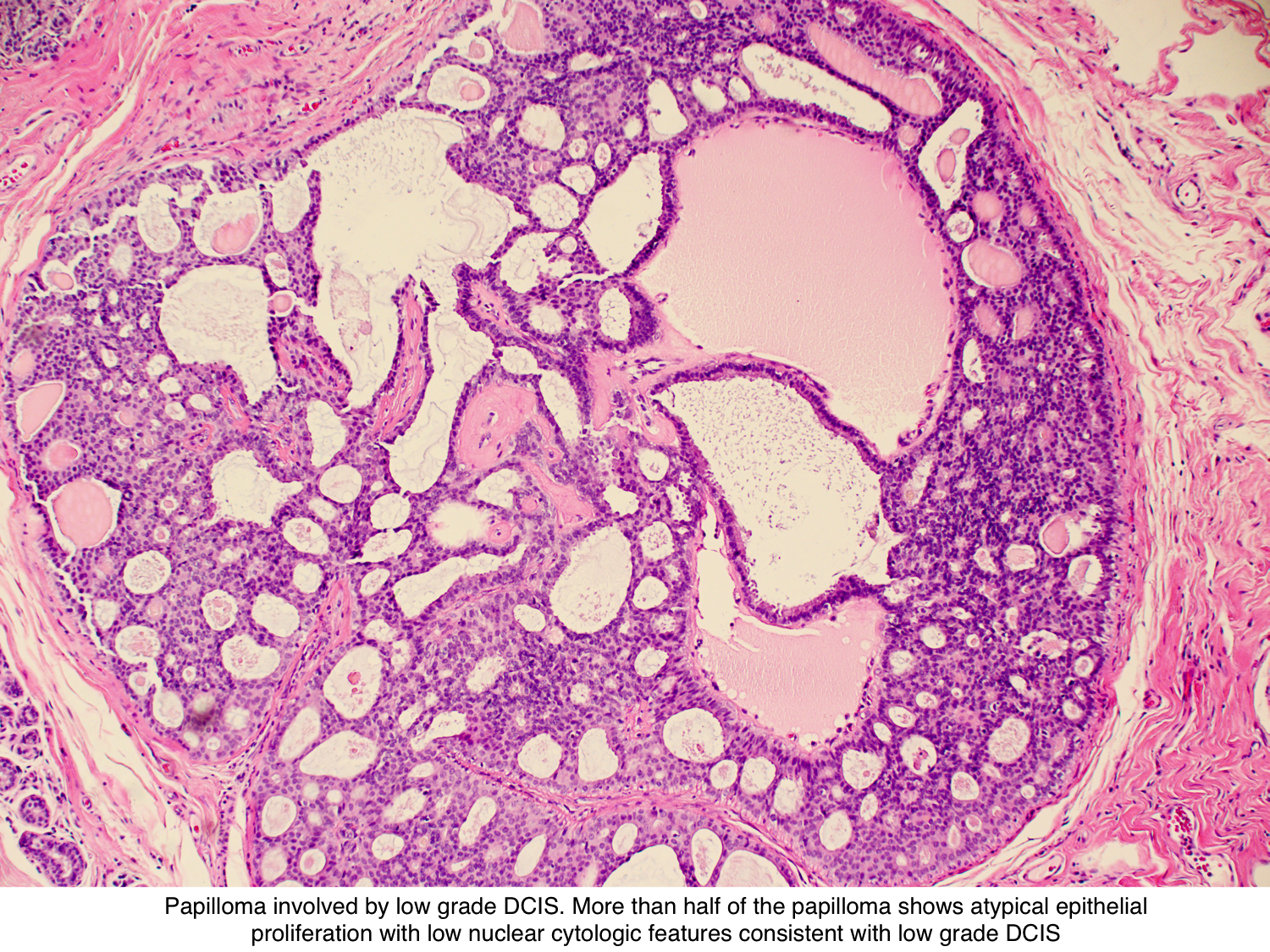 intraductal papilloma left untreated)