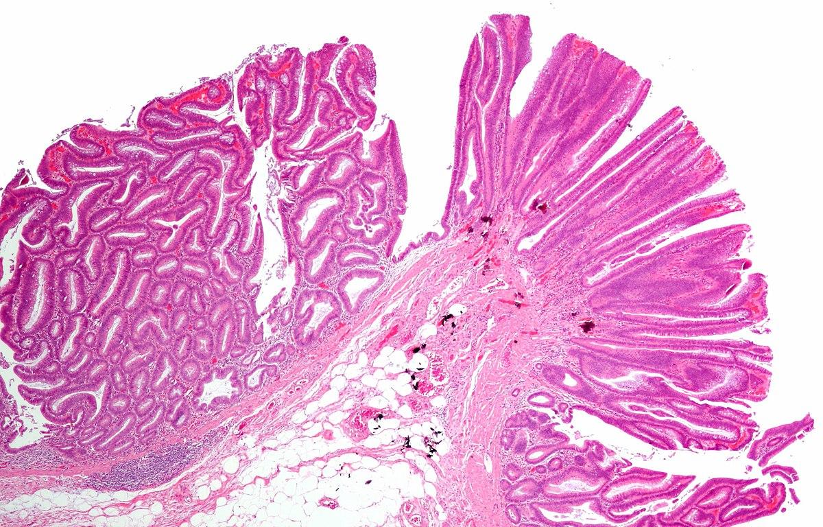 detoxifiere rapida de 3 zile con il papilloma virus si puo rimanere incinta