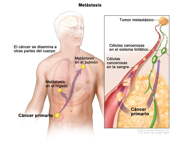 cancer at metastatic cancerul vitei de vie