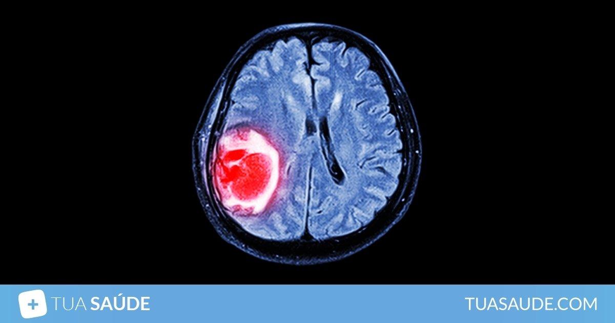 cancer cerebral meninges