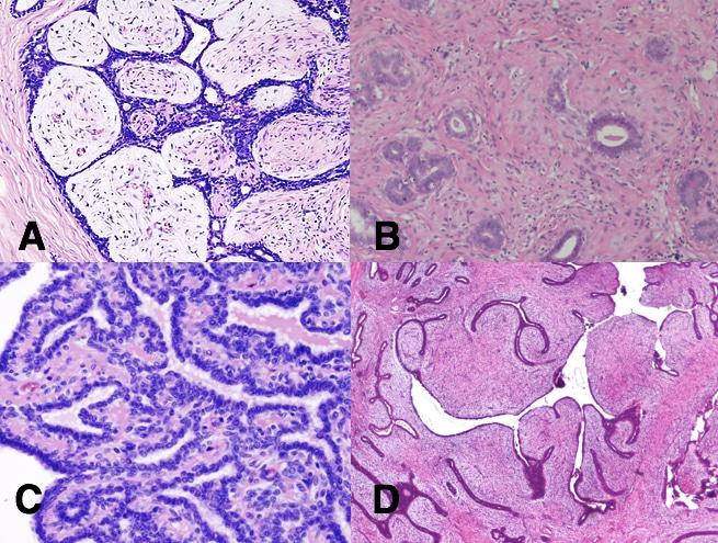 benign breast lump papilloma